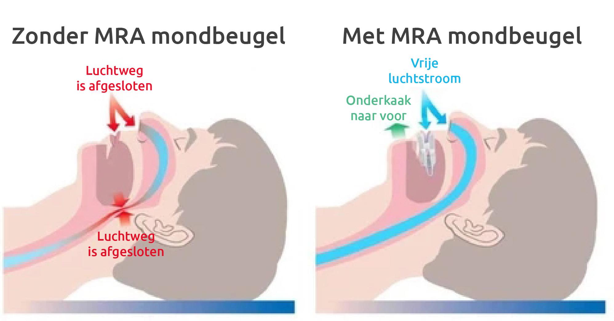Zonder en met MRA